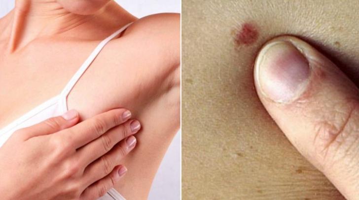 cancer simptome femei