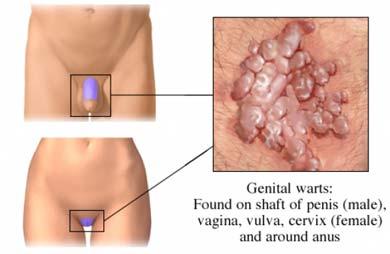 nu vă puteți infecta cu veruci genitale cancerul se transmite prin sarut