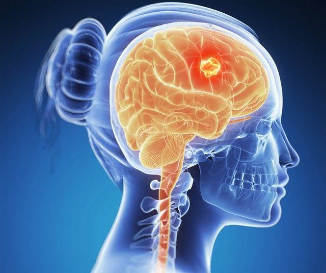 cum să scapi de paraziți în creier