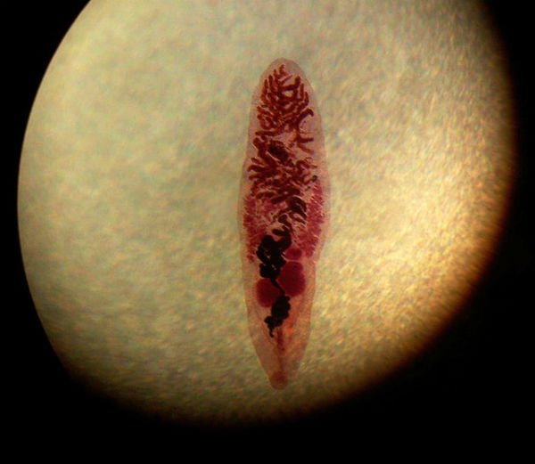 parazit cai biliare