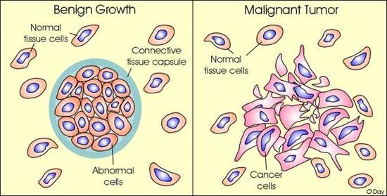 cancer benign and malignant