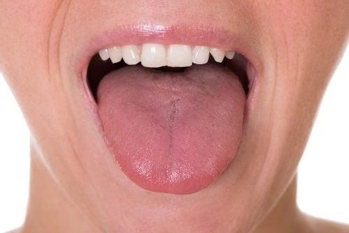 papilloma sulla lingua aggressive cancer on
