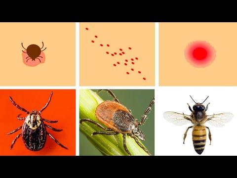 Hpv warts vs molluscum. Hpv warts vs molluscum - Molusca contagioasă la femei