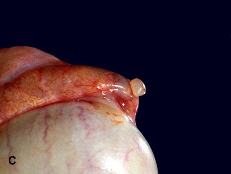 papilom testicular incidența giardia uk
