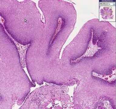condyloma acuminatum histopathology