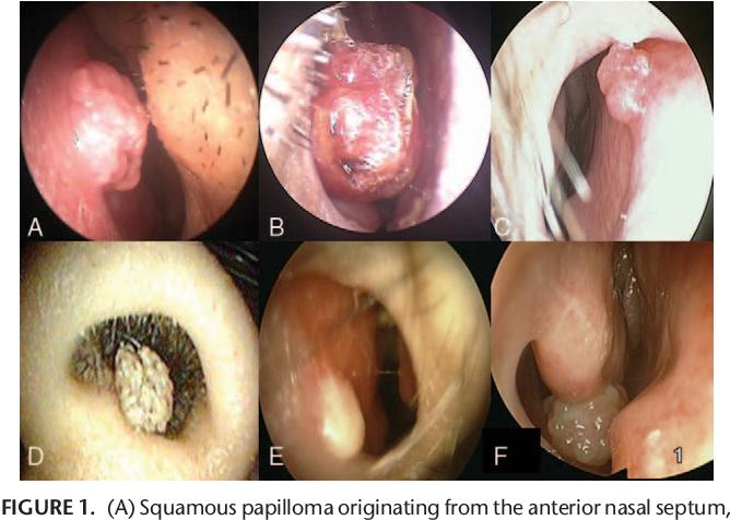 squamous papilloma nasal după îndepărtarea verucilor genitale arde