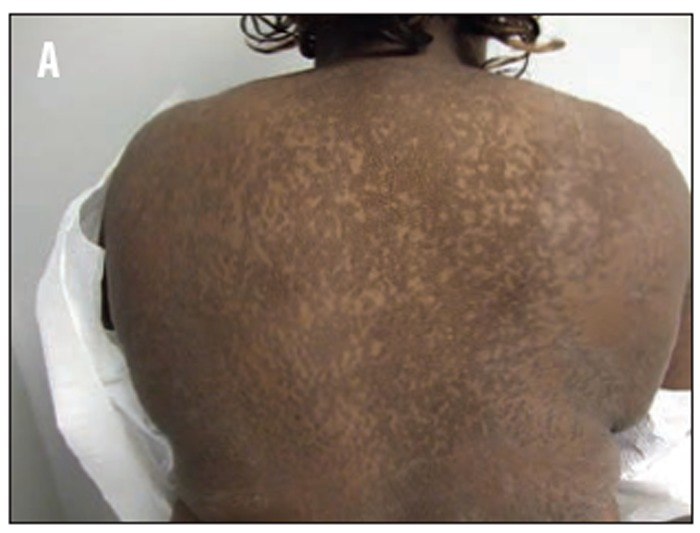 squamous papilloma skin pathology tratamentul papiloamelor corzilor vocale