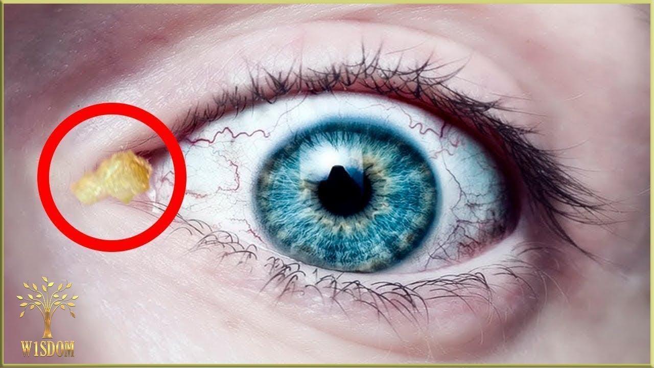tratamentul paraziților din ochi