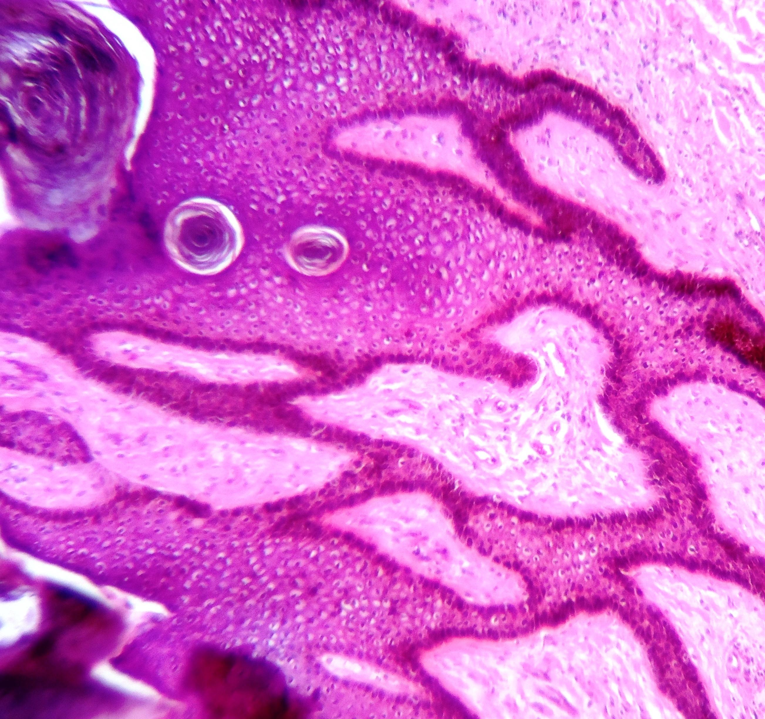 Respiratory papillomatosis pathology outlines Respiratory papillomatosis pathology outlines