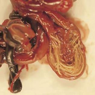 paraziți ai pielii de viermi metode de tratare a paraziților corpului uman