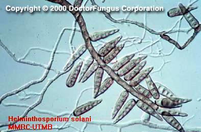 platyhelminthes parenchim funcțional scaun galben giardiasis