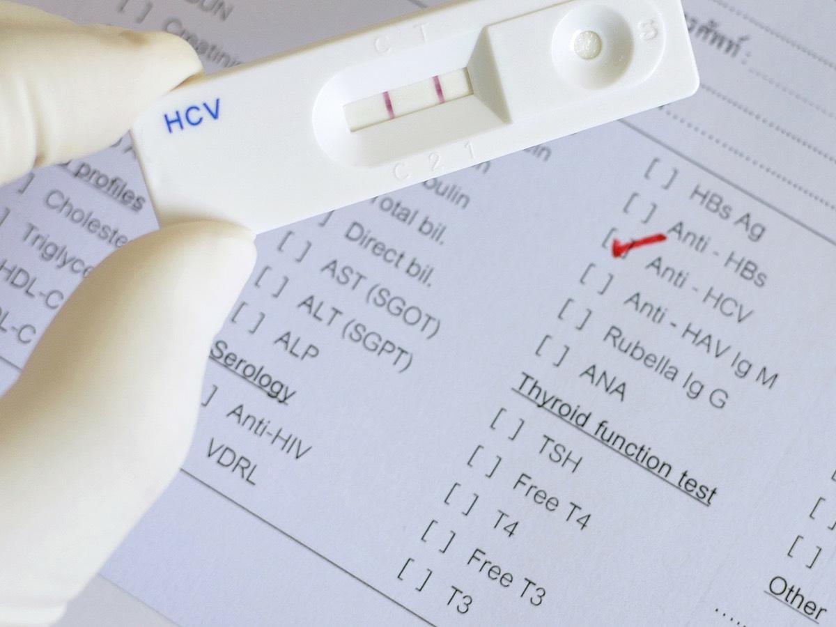 Papiloma en hombres diagnostico. Peritoneal cancer rate survival Papillomavirus homme arbre