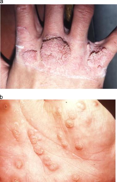 Papilloma on finger. Papilloma finger
