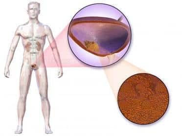 cancer de vezica la femei cancer de prostata diagnostico
