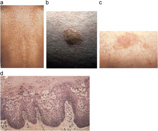 hpv skin discoloration