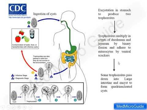 infecție giardia