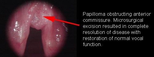 nemathelminthes filum peranan dalam kehidupan papilom pe pleoapa superioară pentru îndepărtare