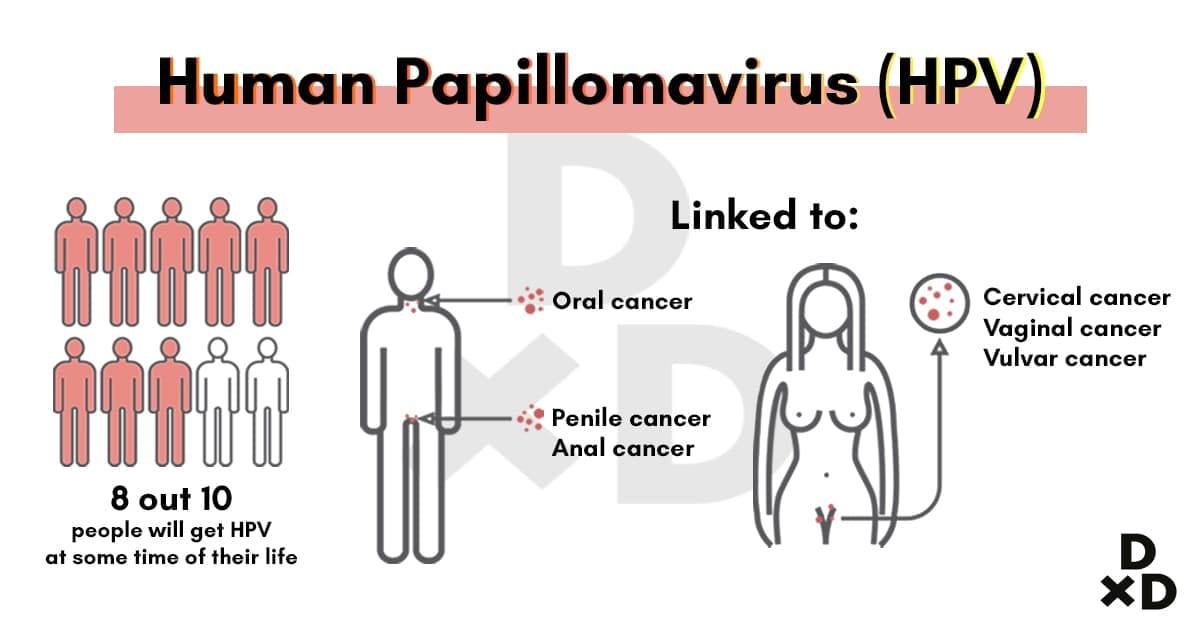 ovarian cancer jab singapore îndepărtarea condilomului din Omsk