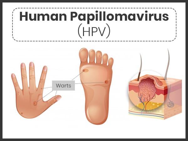 Papillomas warts