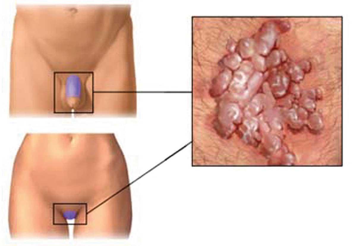 papilloma virus all uomo cum să eliminați pastilele de viermi