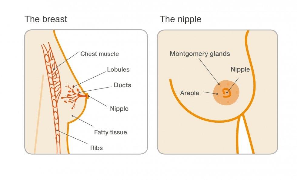 Can intraductal papilloma be cancerous papilloma of nipples cancer orofaringian cauze