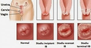 zentel tablet uses in urdu abdominal cancer symptoms female
