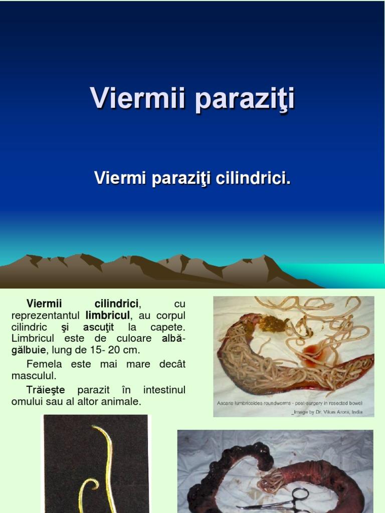 dezvoltarea de viermi paraziti tratamentul colitei ulcerative cu viermi