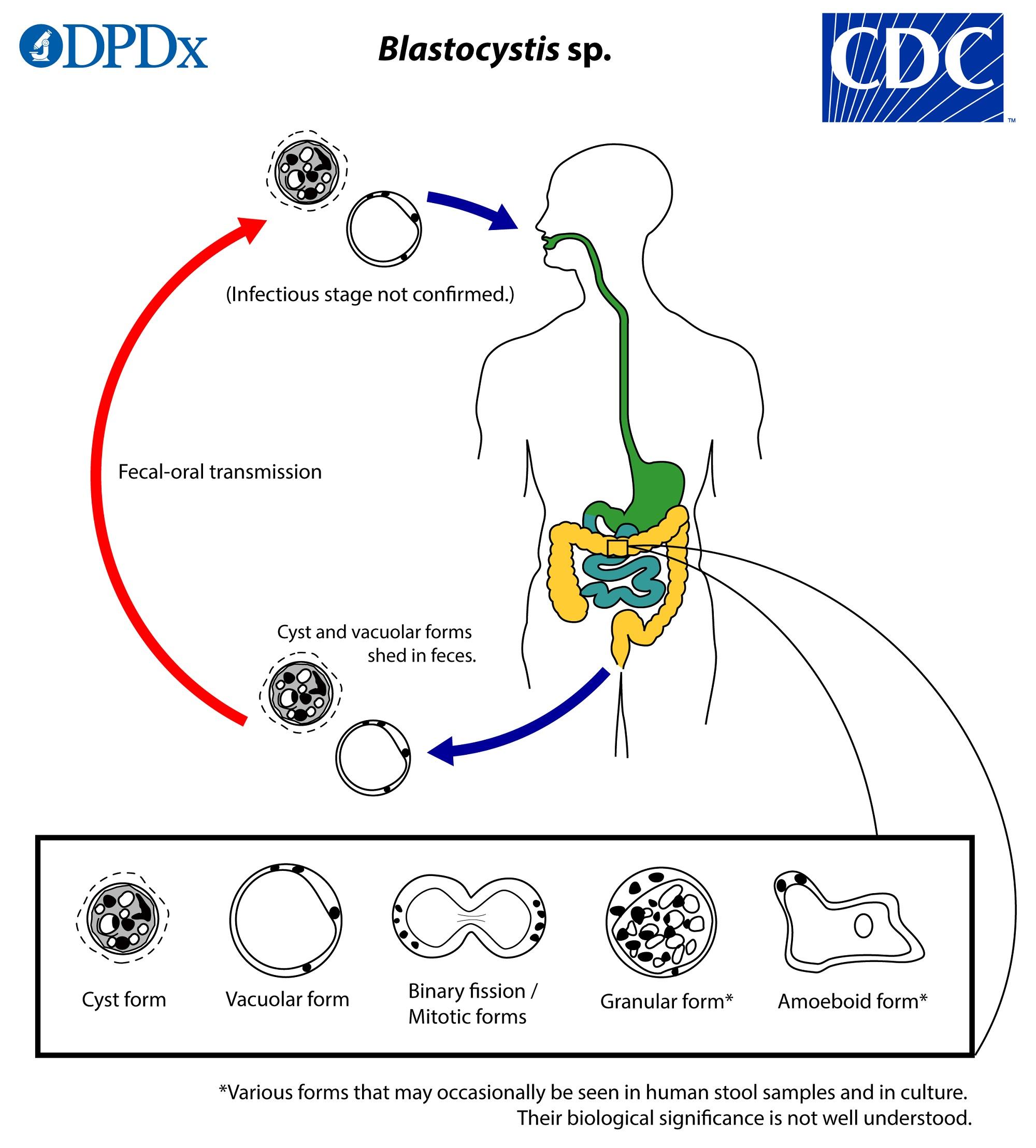 paraziti cdc dpdx papilom în gură medicamente de tratament