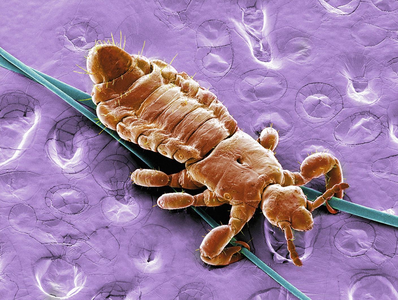 paraziti v lidske kuzi descrierea giardiozei