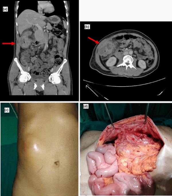 abdominal distension rectal cancer