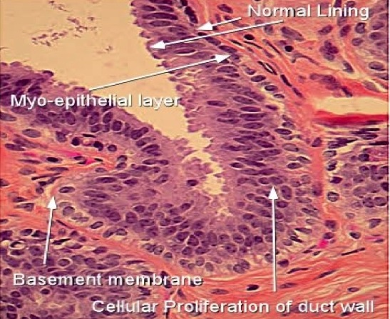 Intraductal papilloma with usual ductal hyperplasia,