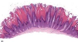 papilloma intraduttale ghiandole salivari