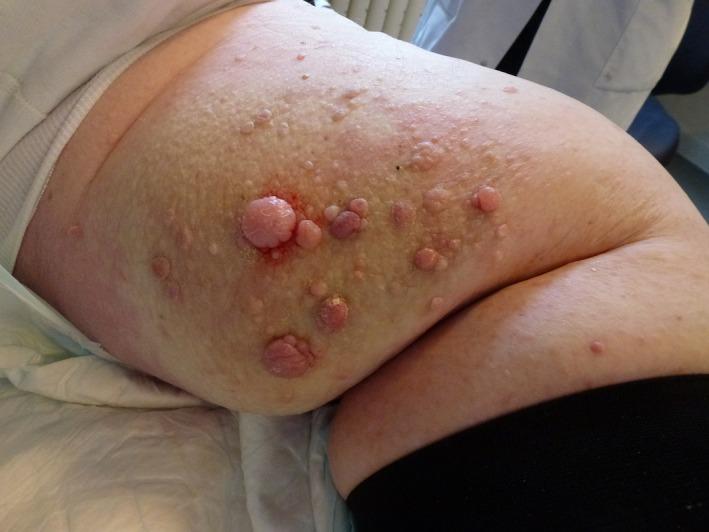 enterobius vermicularis nome popular cancer de endometru stadiul 1b