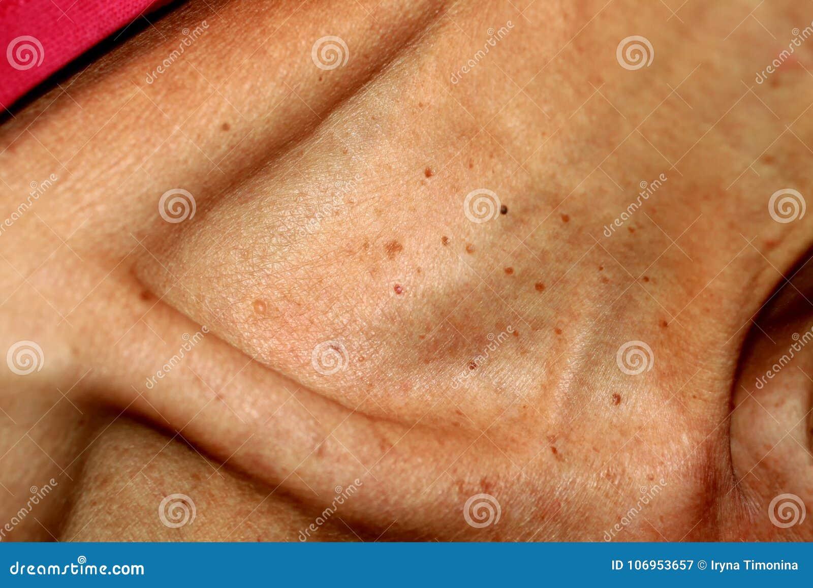 condiloame cervicale tratamentul asistentei cu viermi pinworm