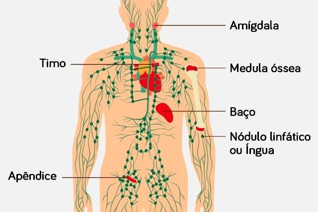 Que es cancer linfatico sintomas, Limfomul Hodgkin: cauze, simptome, diagnostic, tratament