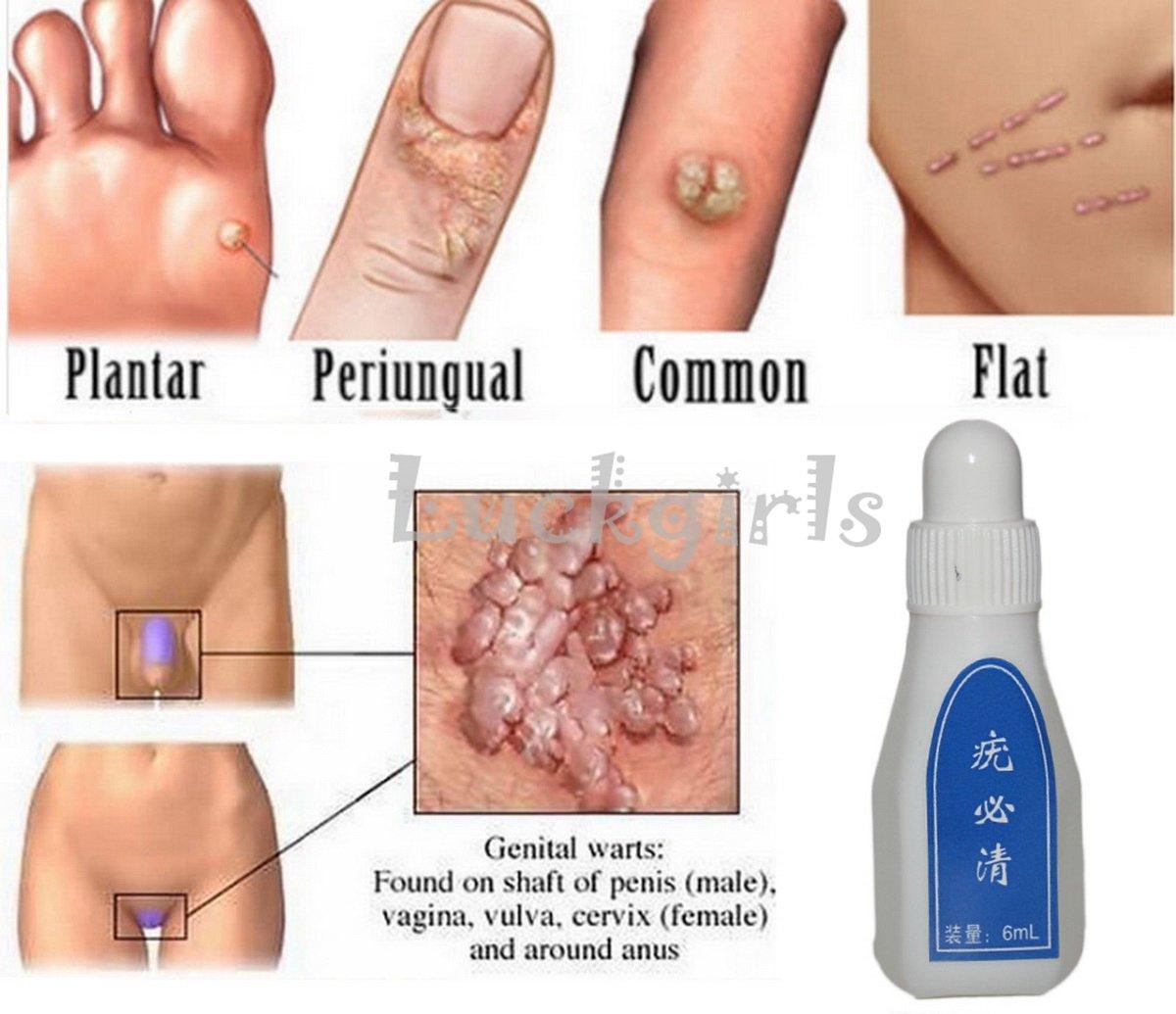 hpv outbreak symptoms