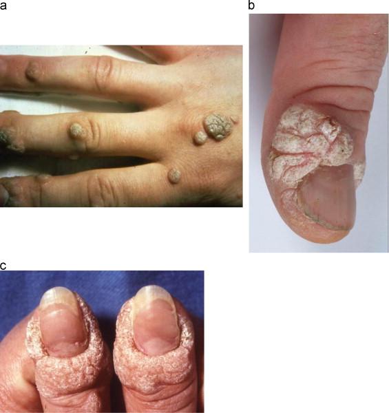 human papillomavirus warts on hands