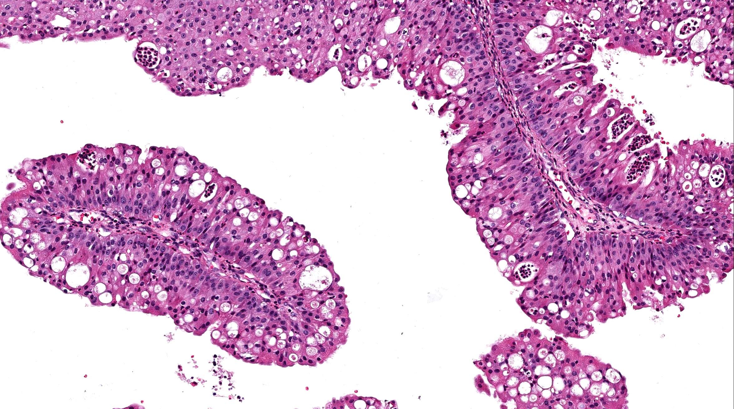 kind toxine ausleiten papilloma virus vie di trasmissione