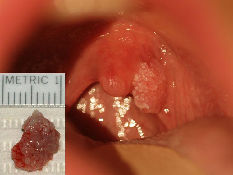 papillomas and hpv vaccin papilloma virus avis