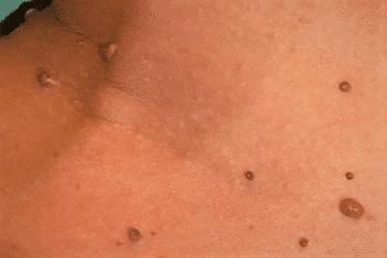 papillom hals entfernen venin de porc porcine