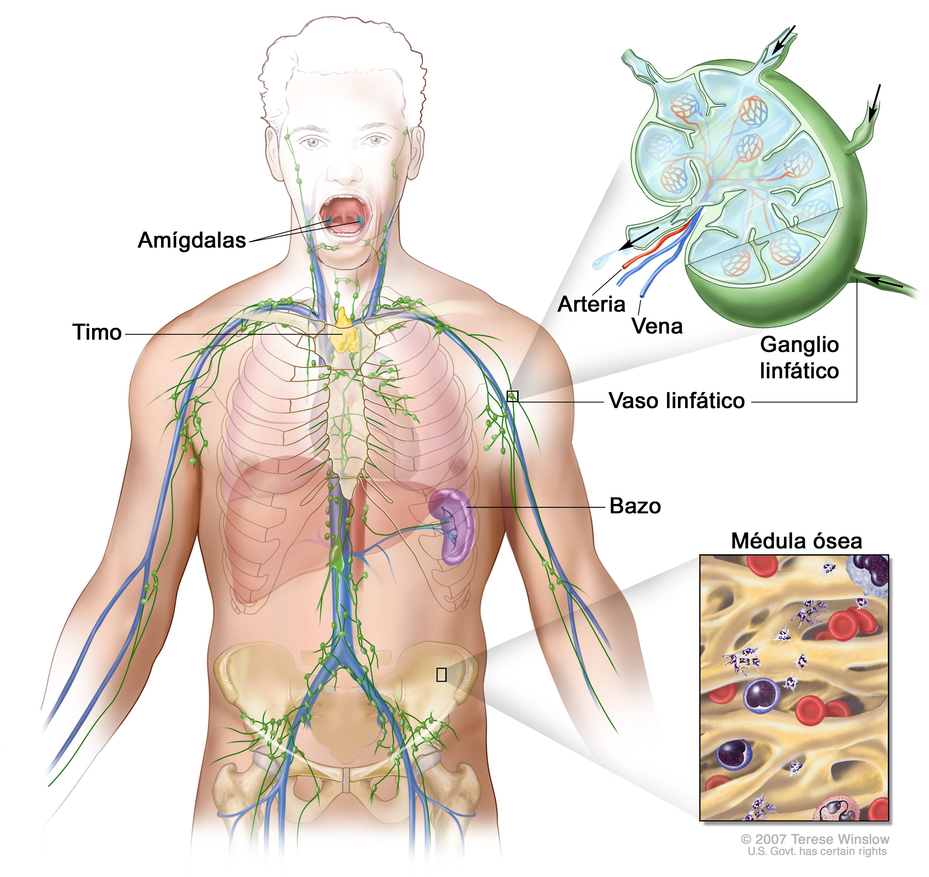 cancer hodgkin linfoma vierme cu bandă de vite