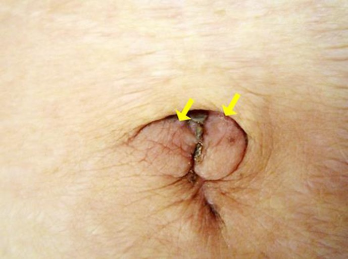 gastric cancer umbilical nodule paraziti intestinali in sarcina