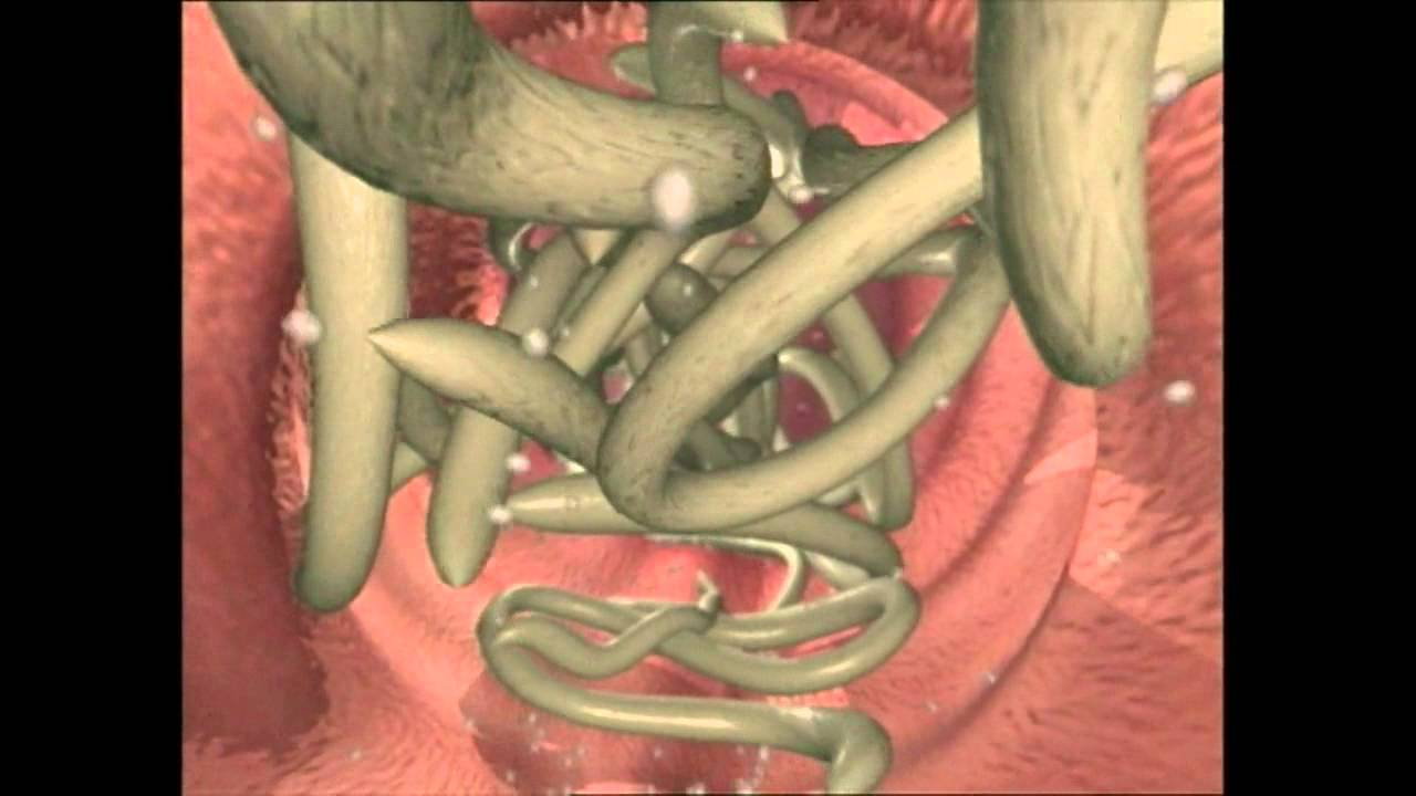 viermi rotunzi ca un tratament toxiner i kroppen