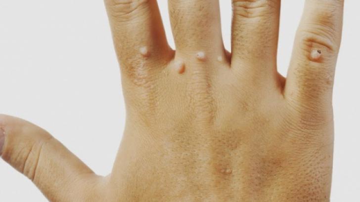 negi genitale în gât tratamentul helmintelor la copii
