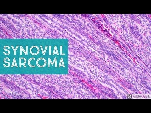 anticorpi de helmint