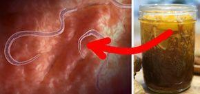 Am veruci genitale vagin după îndepărtarea verucilor genitale