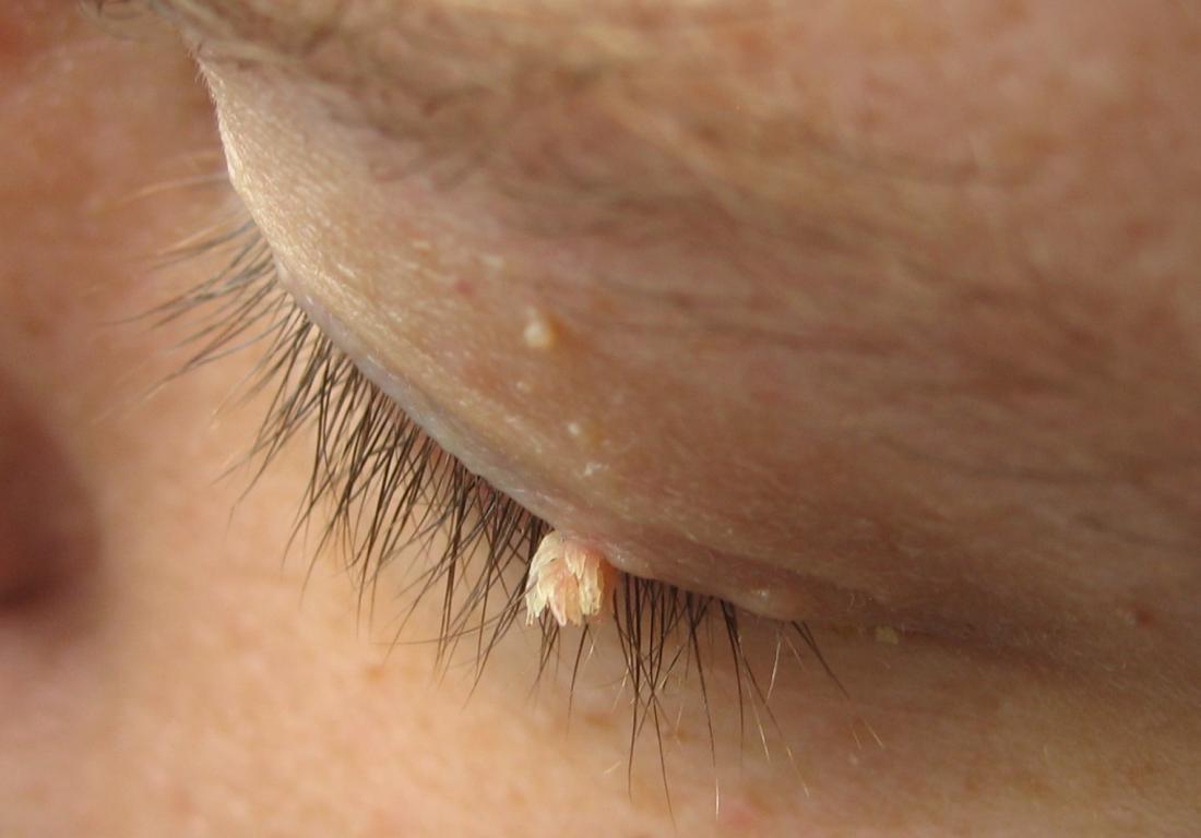 Wart treatment with apple cider vinegar - Warts on older skin