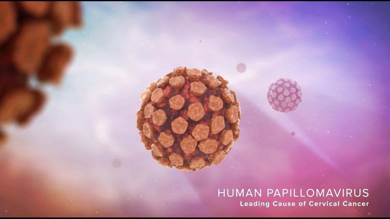 papilloma virusi qartulad