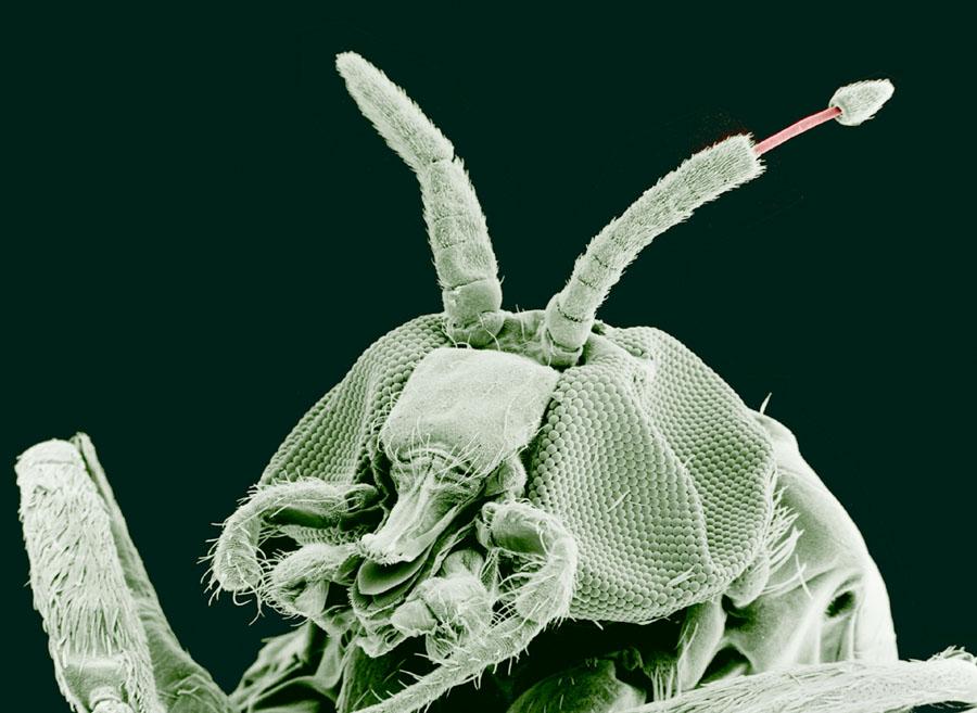 paraziti v lidske kuzi unguent de papilom