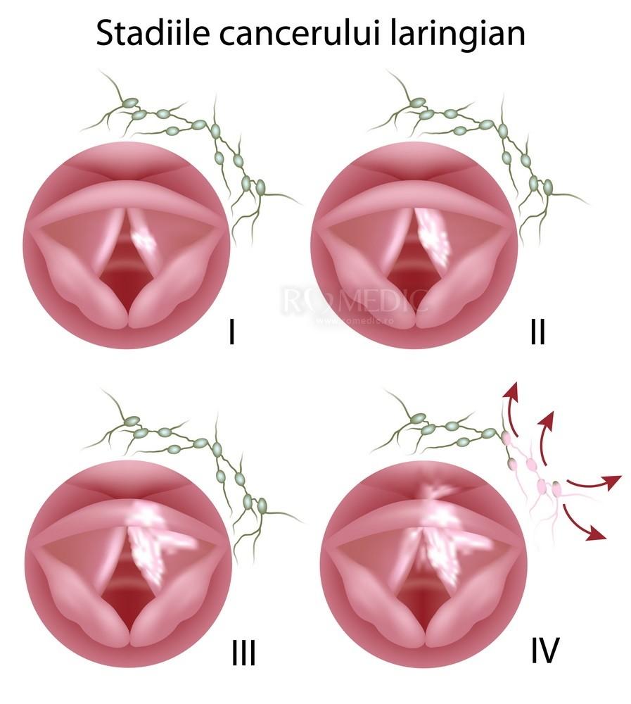 simptome limbrici adulti laryngeal cancer treatment